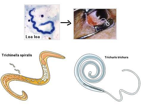 nemathelminthes gambar cancer colon kras mute