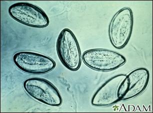 comprimate de enterobioză