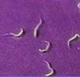 gel pentru tratarea negi genitale respiratie urat mirositoare halena