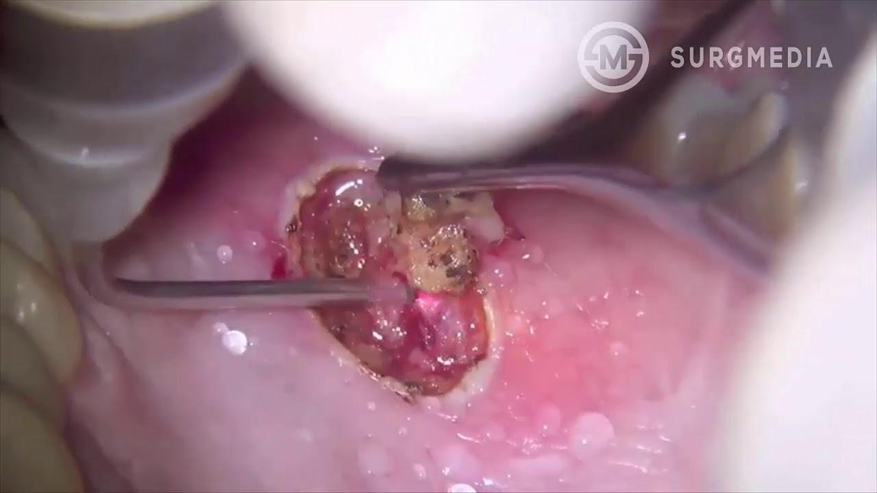 papilloma how to remove împotriva paraziților din corpul uman