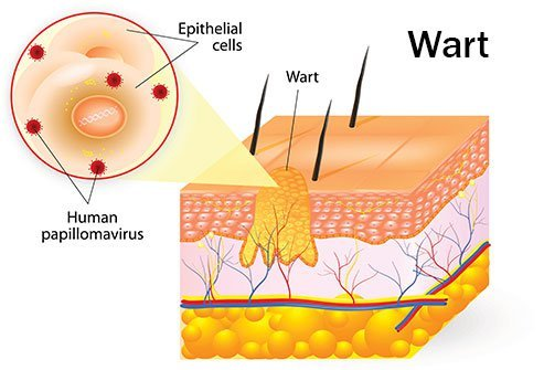 Meaning of papilloma in marathi. Wart treatment molluscum, Meaning of papilloma in marathi