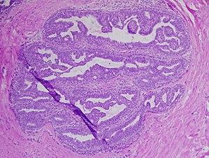 verucile genitale le fac rău cum se numesc pinworms