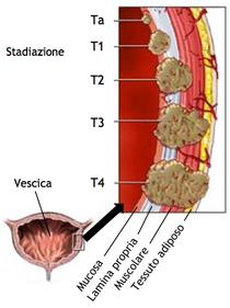 papilloma vescicale tac simptomele virusului papiloma la femei