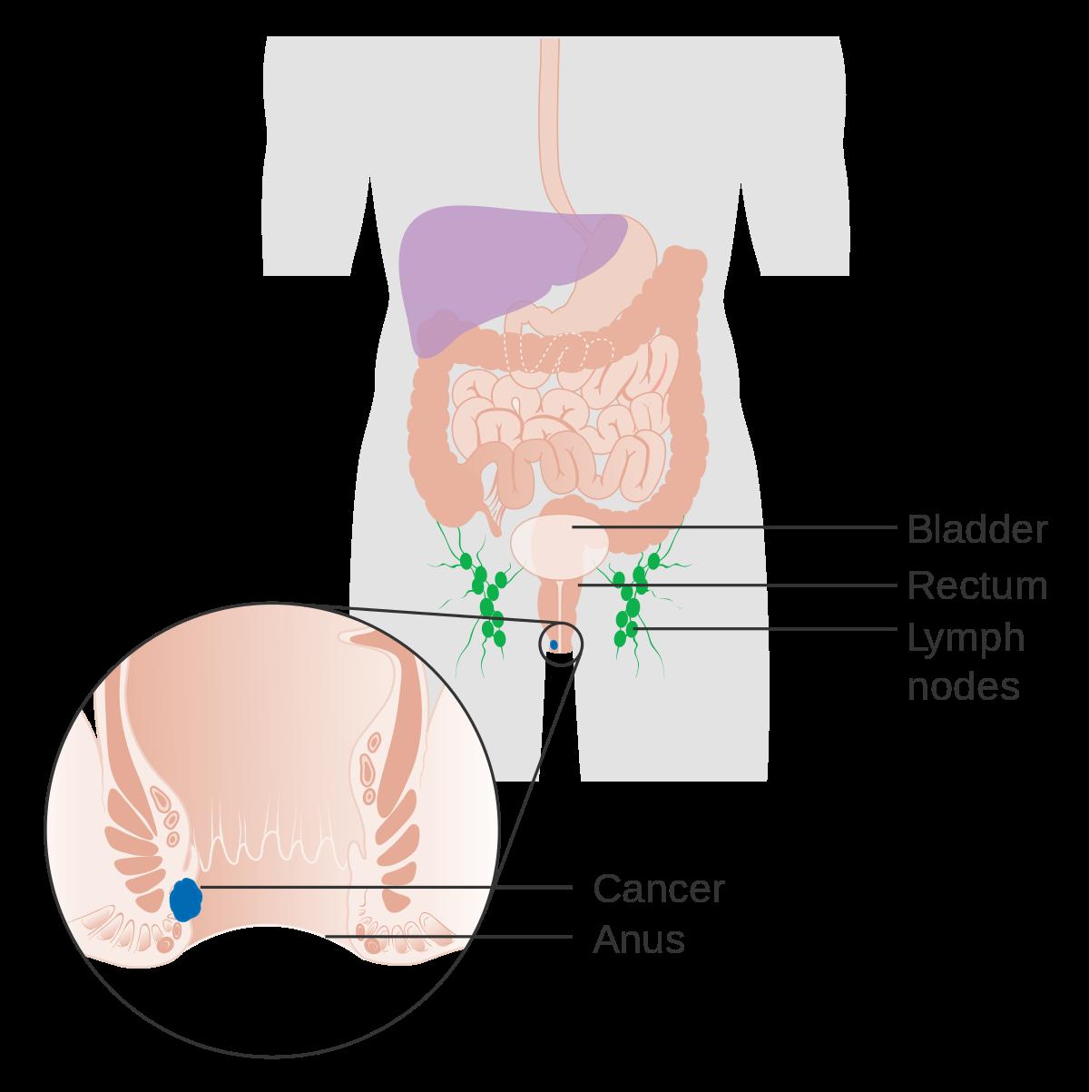papilloma virus cancro colon
