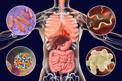 cum să tratăm papilomele plate pe corp imaginile cdc sunt parazite
