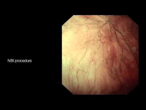 papillomatosis sintomas