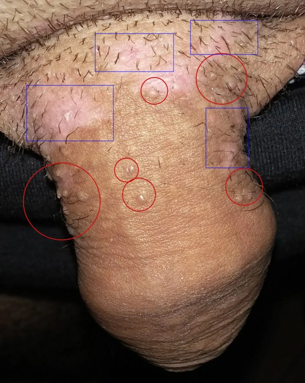 Papillomavirus humain symptomes chez la femme, Papillomavirus homme medecin