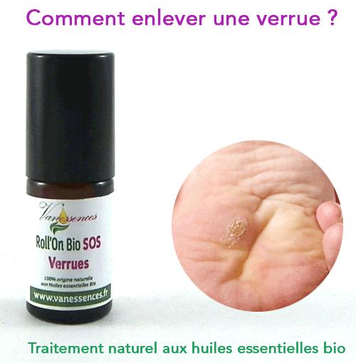 papillomavirus traitement huile essentielle nemathelminthes nevertebrate hewan