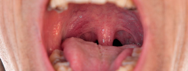 papiloma de la boca hpv impfung manner ikk