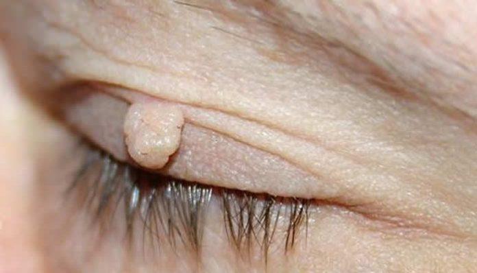 papiloma virus i bradavice cele mai bune pastile pentru enterobii