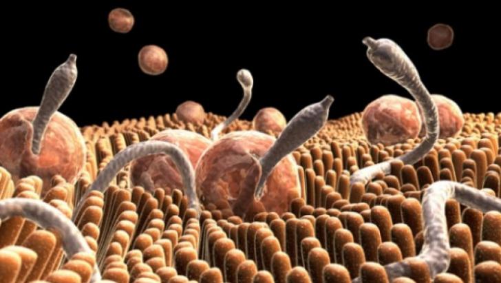papanicolaou anormal y vph negativo curățarea antiparazitară a organismului prin mijloace naturale