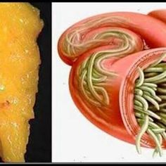 paraziti organism