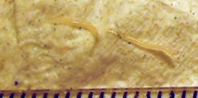 Paraziti controlati. Deparazitarea intestinală prin apifitoterapie