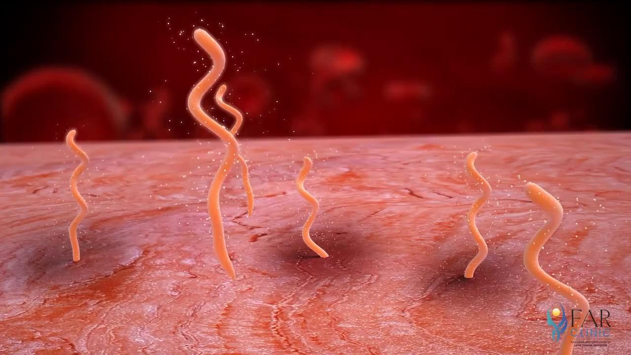 paraziti nume de viermi îndepărtarea verucilor genitale unde