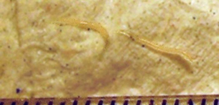 human papillomavirus function curatare colon timisoara