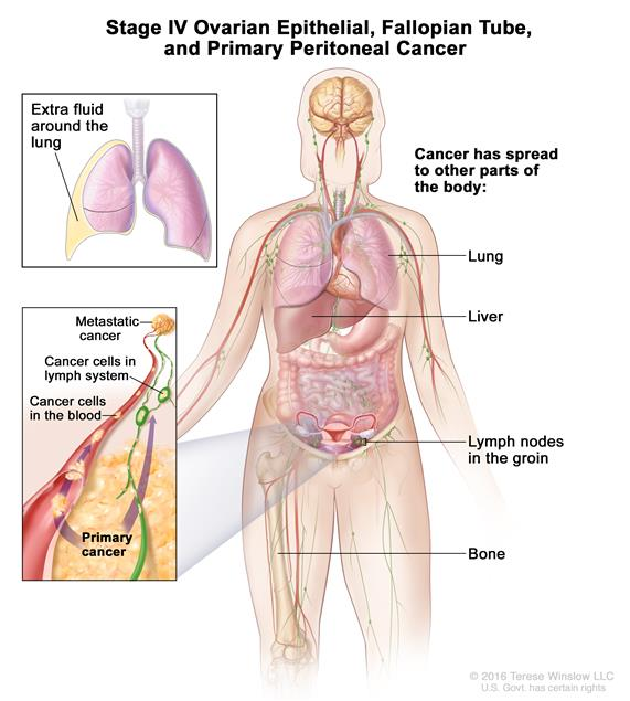 peritoneal cancer liver neuroendocrine cancer history icd 10