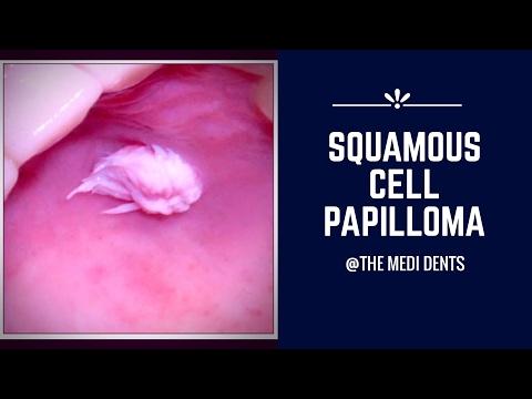 viața pinworms enterobius vermicularis definitive host