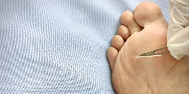 prevenirea verucilor plantare condilom al vaginului la femei