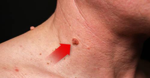 q significa papiloma hpv throat mucus
