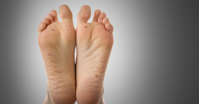 recenzii despre aloe din negi hpv and feet
