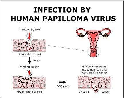 signs and symptoms of human papillomavirus hpv)