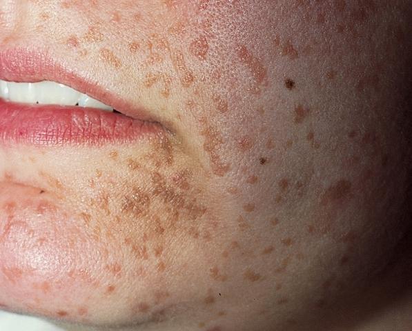 simptomele papilomavirusului uman în tratamentul femeilor)