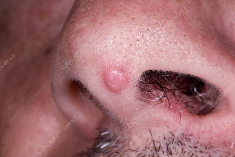 Removal of papillomas, Papilloma removal london Squamous cell papillomas removal