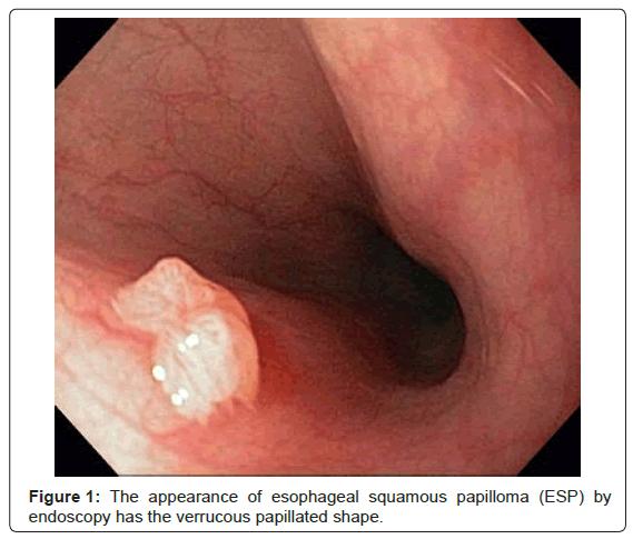 Papilloma virus in the eye, Squamous papilloma with hyperkeratosis