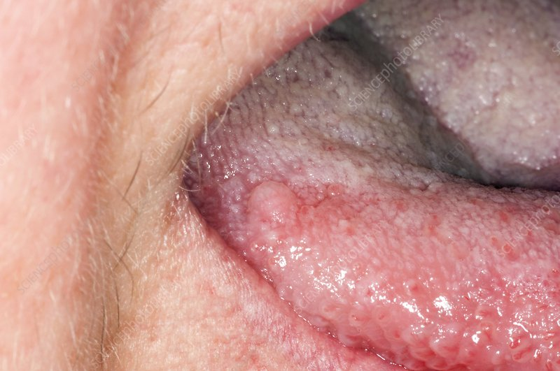 is squamous papilloma an std