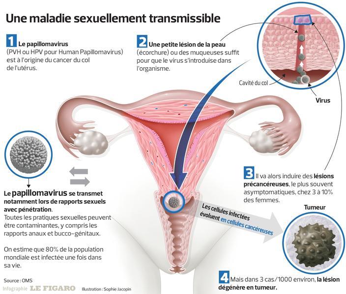 traitement papillomavirus chez la femme)