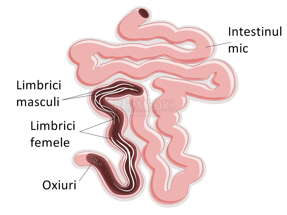 tratament clinic pentru paraziți mam anemia w ciazy