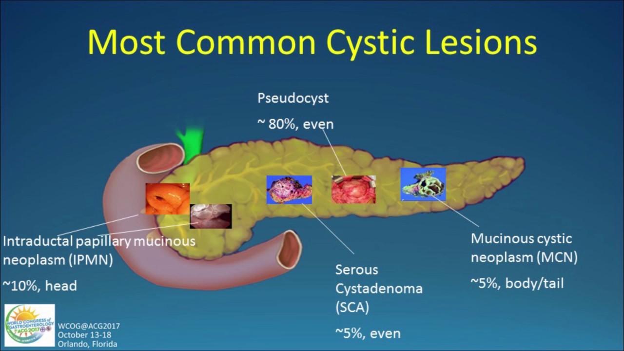 tratamentul helmintelor pancreatice