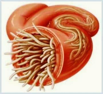 Ce este un parazit intestinal?