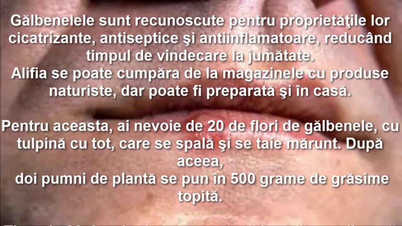 condilomul colului uterin exofitic