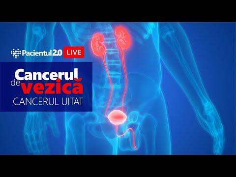 Viermi în tratamentul vezicii urinare. Antrenarea vezicii urinare pentru controlul acesteia – TENA