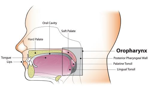 virus hpv et cancer de la gorge cancer colon resection