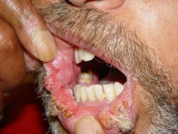 virusul papilomului uman la femei