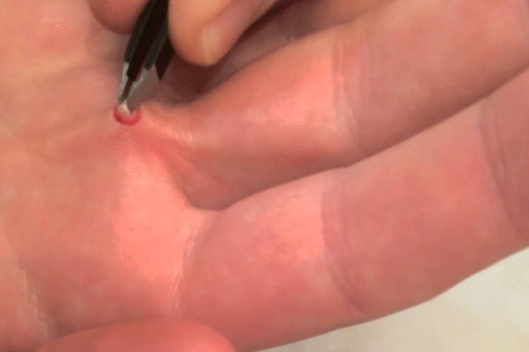 Common warts on hands removal