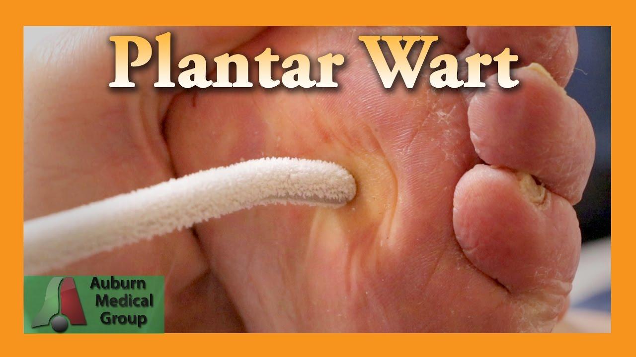 wart treatment length