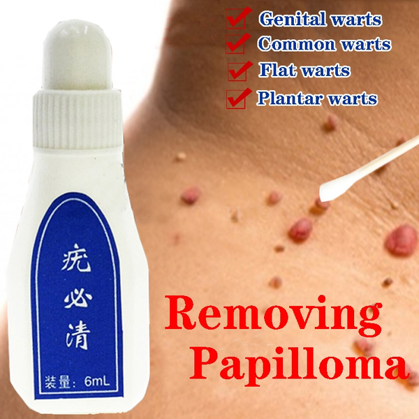 warts and papillomas treatment plasturi detoxifiere calivita forum