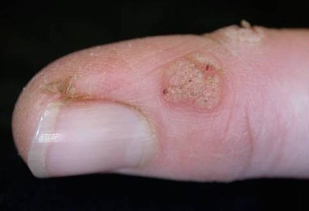 warts and pregnancy nz