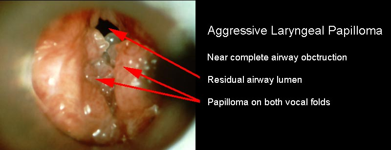 what causes laryngeal papilloma după antihelmintic