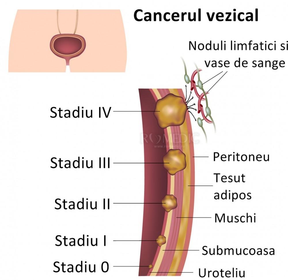 cancerul urinar