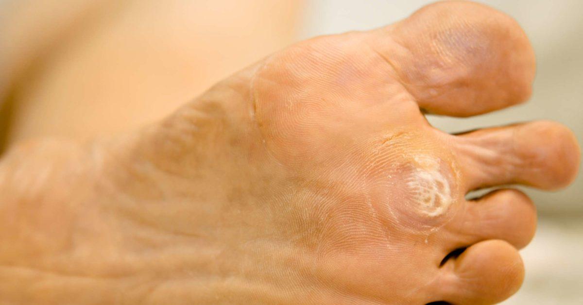 tratamentul tiumenului de helminți