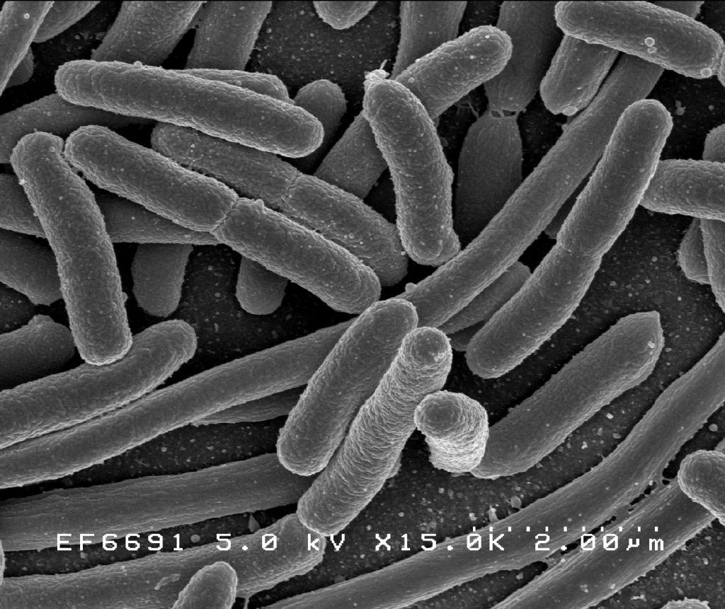 bacterii aerobe exemple