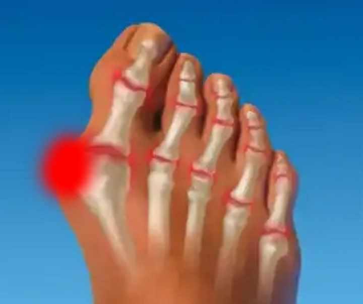 calus între degetele de la picioare tratament