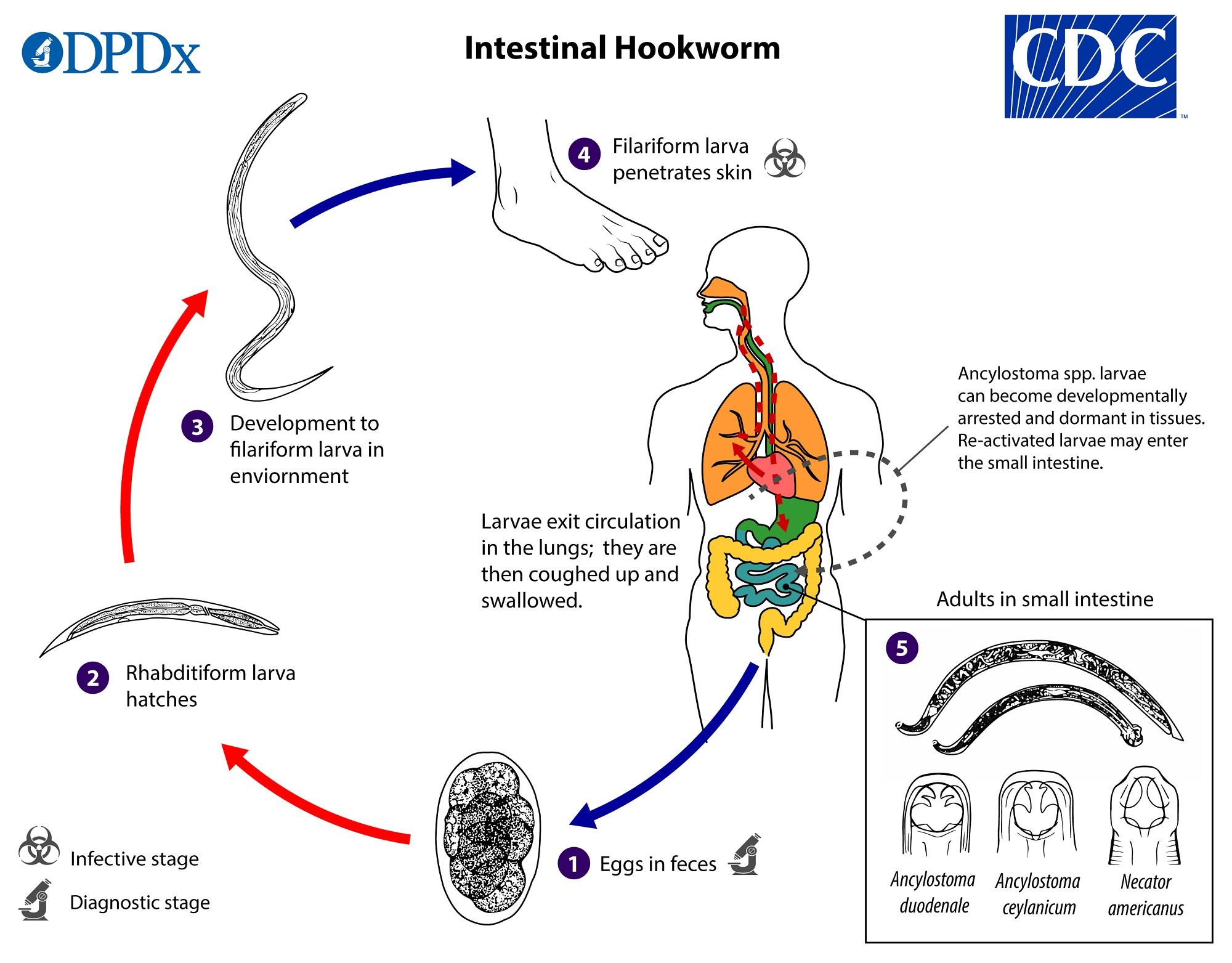 Helminthiases modul de determinare, Juvenile papilloma larynx