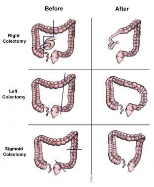 Colon cancer hepatic flexure surgery