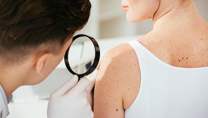 simptomele umflăturii sunt frecvente papillomavirus a l oeil