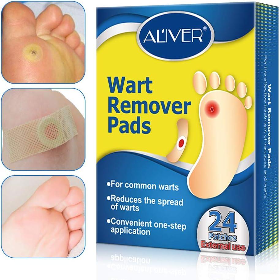 wart treatment foot